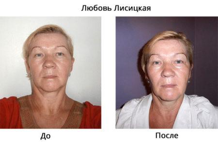 lubov-lisickaya